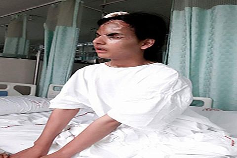Shabir Shah adopts pellet victim Insha Mushtaq