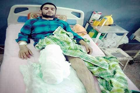 Electrocuted labourer: Family struggles to meet treatment cost