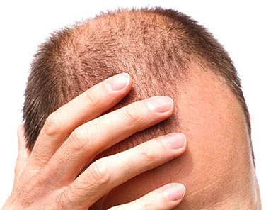Treatment to prevent balding, greying hair in the offing