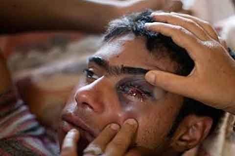 Kashmir: Eight women among ten injured after forces fire pellets in Shopian town