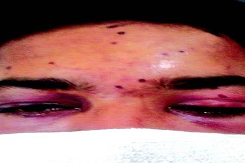 50-year-old Shopian woman, 2 others suffer eye pellet injuries