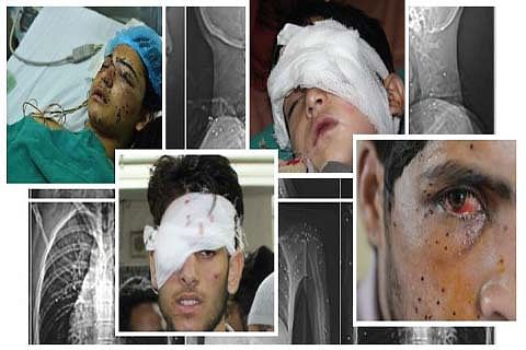 WORLD SIGHT DAY: Out of over 1000 victims blinded by pellets, Govt compensates just 17