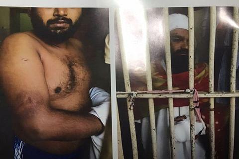 Kashmiri prisoner tortured in Tihar jail hospitalized in Sopore on court directions