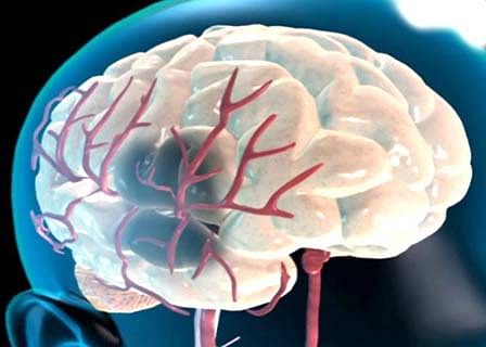New stroke treatment reduces brain damage