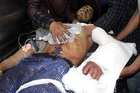 Srinagar hospitals receive 45 youth with bullet, pellet injuries; 3 critical, say doctors