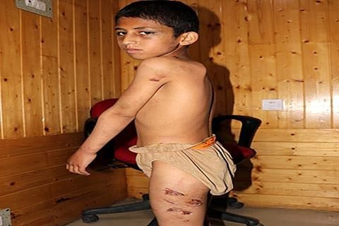 Abused by parents, boy wants to stay at childcare centre
