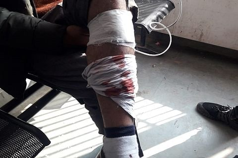 Pack of stray dogs attacks and injures 51 persons in north Kashmir's Baramulla