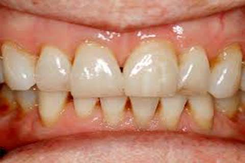 Oral Health Care  Considerations during Ramadhan