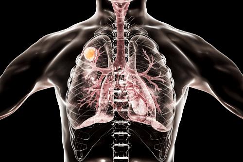 Aspergilloma of Lung