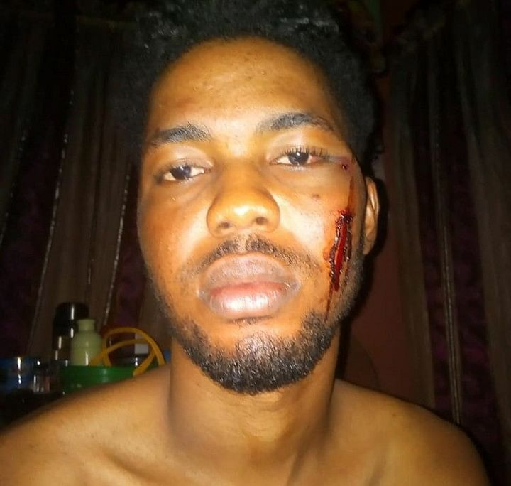 Chef Beaten To Stupor By Client Who Tricked Him With Job Offer