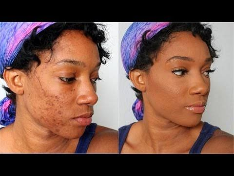 5 Reasons Your Acne Products Are Not Working