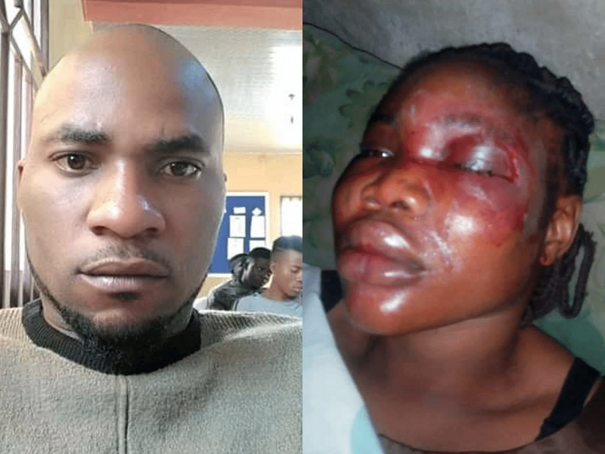 Man Disfigures His Fiancée Ahead Of Their Wedding In Ibadan