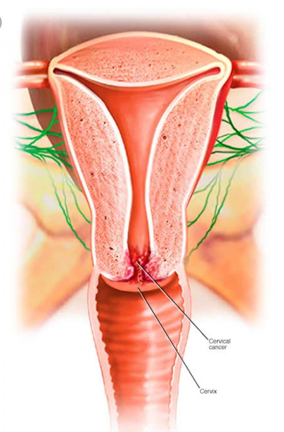 Cervical Cancer: Know The Signs And Symptoms