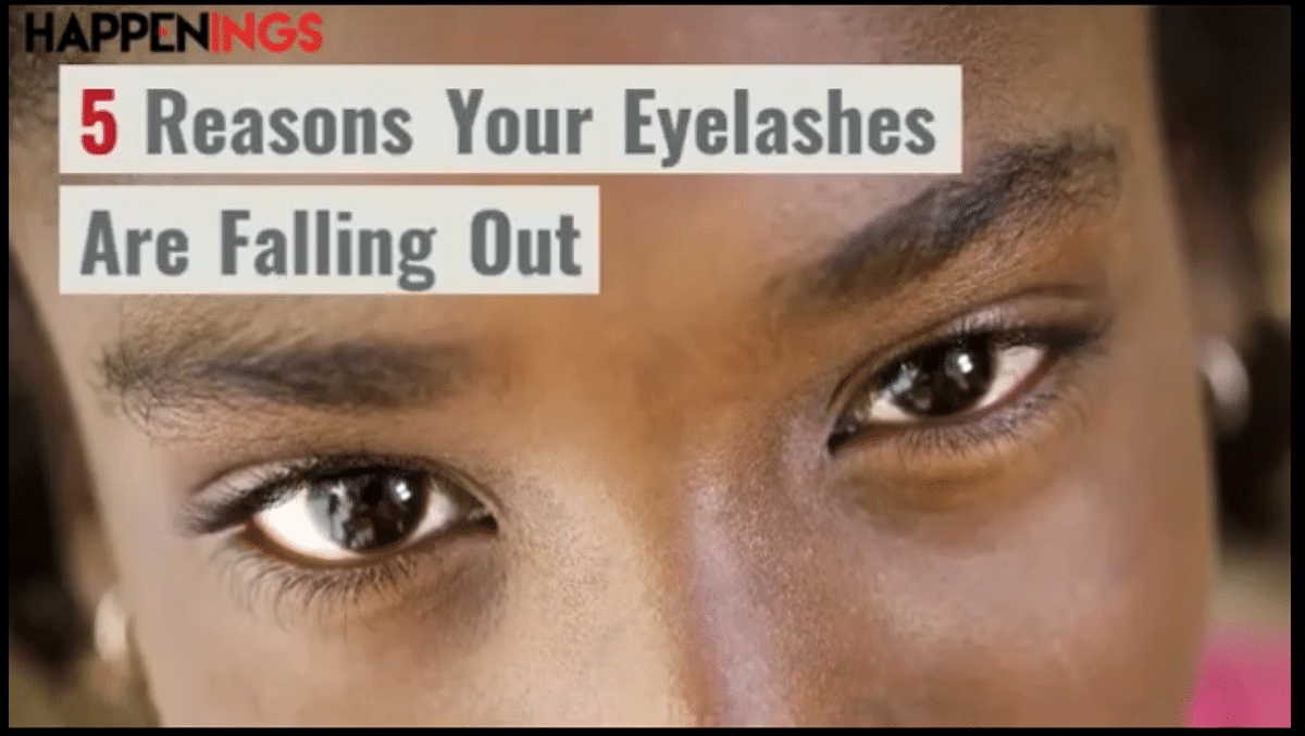 5 Reasons Your Eyelashes Are Falling Out