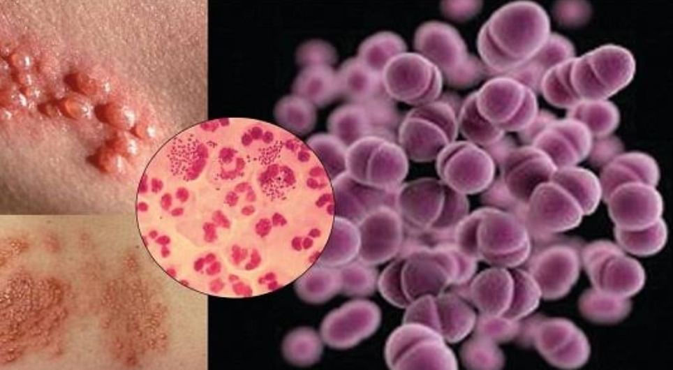 5 Implications Of Untreated Gonorrhea