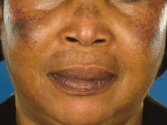 This Is Why You Shouldn't Use Products With Hydroquinone