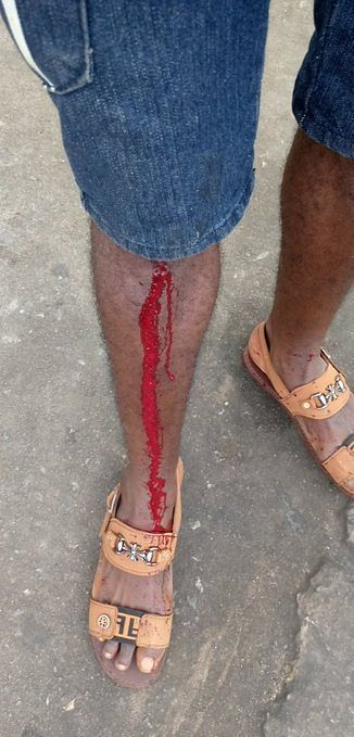 A protester shot with Rubber bullet
