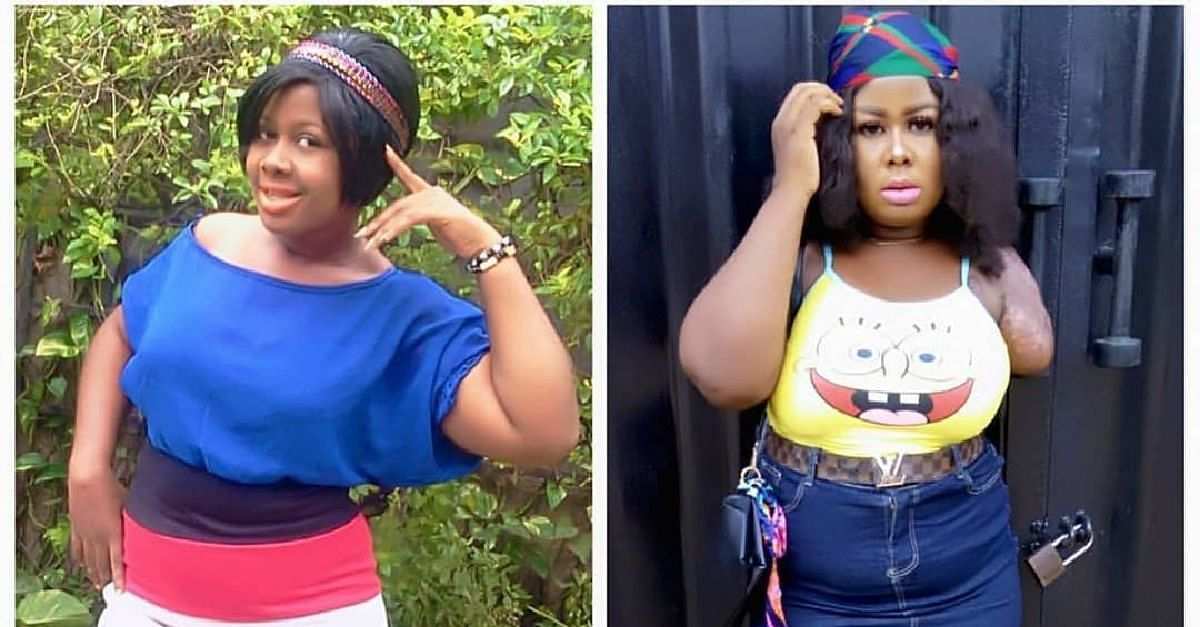 Popular Amputee Narrates Her Shocking Church Experience