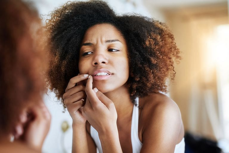 4 Natural Remedies For Acne And Pimples