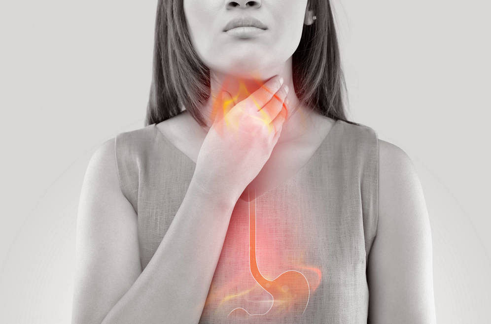 7 Common Foods That Can Trigger Heartburn