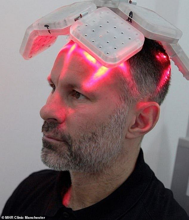 Ryan Giggs To Undergo Laser Hair Transplant