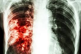 N50.75bn Grant Approved To Tackle Tuberculosis In Nigeria