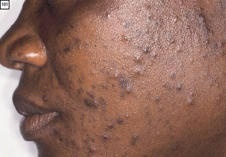 Groundnut Does Not Cause Pimples! See What Does And How To Treat It
