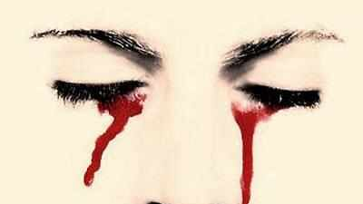 25-yr-old Indian woman cries tears of blood during periods due to rare condition