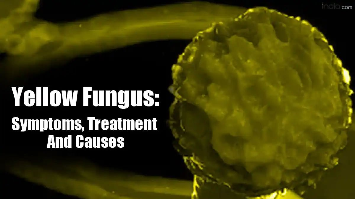 Symptoms, prevention and causes of yellow fungus, black fungus and white fungus