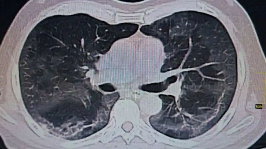 COVID-19 may cause long-term lung damage: Study