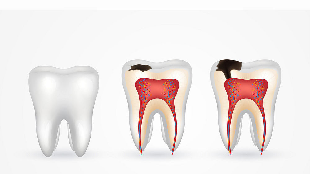 All about caries