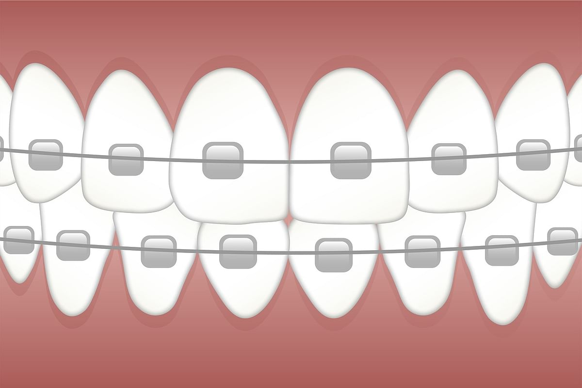 Get your teeth aligned to prevent caries.