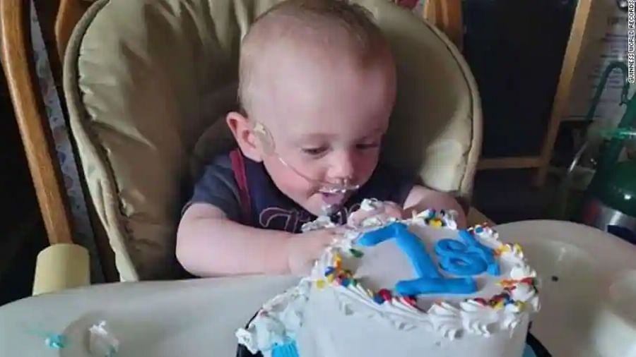 World's most premature baby fights all odds to celebrate first birthday