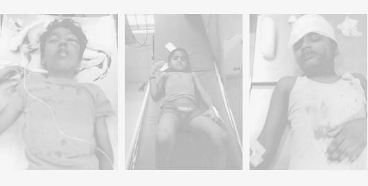 பால்கனி சுவர் இடிந்து விழுந்து 3 குழந்தைகள் படுகாயம் - சென்னையில் கோர விபத்து!