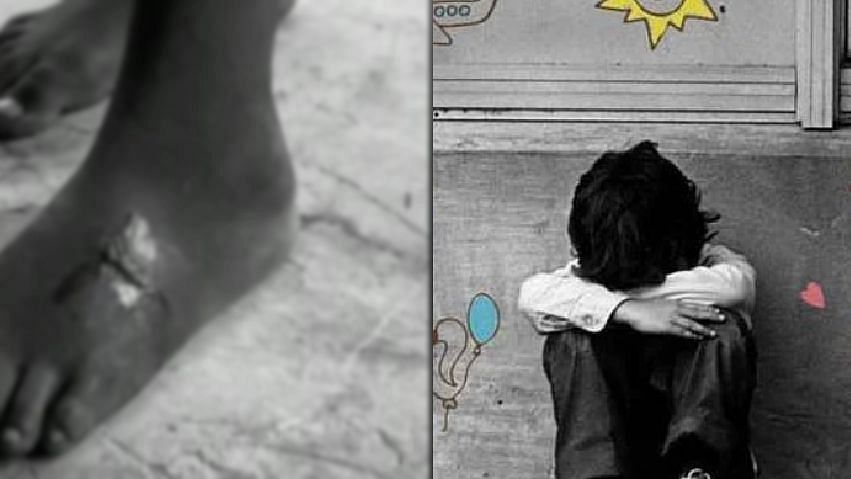சாலையில் வலியோடு நடந்துச் சென்ற சிறுவன்.. பெற்ற மகனுக்குச் சூடுவைத்த கொடூரத் தாய் : அதிர்ச்சி தகவல்!