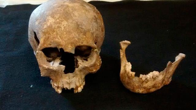 ¡Sorprendente! Encuentran restos milenarios que tenían una endodoncia, en Michoacán