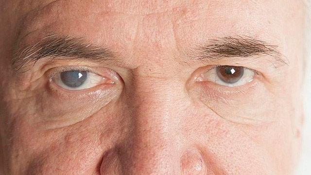 El glaucoma es la primera causa de ceguera irreversible en México