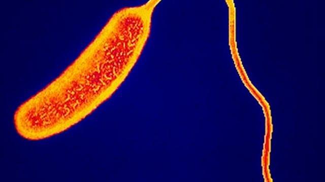 Tras 21 años, surge primer caso de cólera en Tabasco