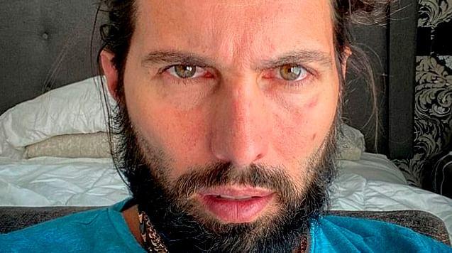"""Ayer me tumbó""; Poncho De Nigris luce mal debido al Covid-19"