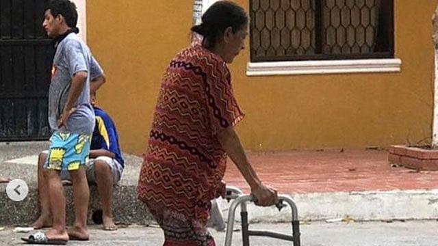 Mujer que usaba un tubo de PVC como prótesis consigue ayuda