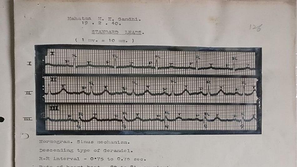 Now listen to Mahatma Gandhi's heart beat at Gandhi Museum, Delhi