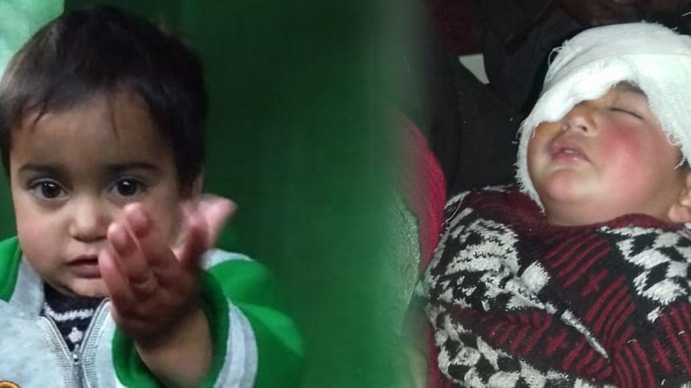 Kashmir: 19-month-old baby becomes the youngest pellet gun survivor