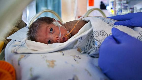 Nestle violates law in India, conducts clinical trials on premature infants for baby food