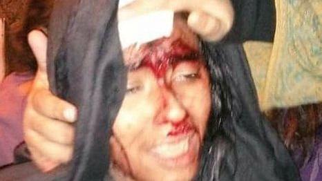 Masked mob terrorises JNU campus, 24 students and teachers injured