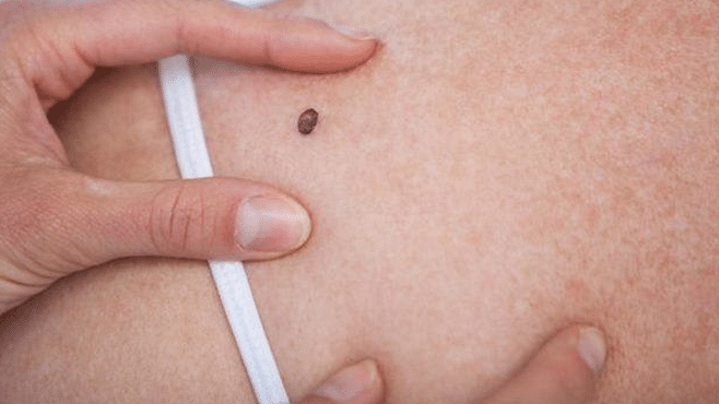Wearable patch can efficiently deliver drug to treat skin cancer