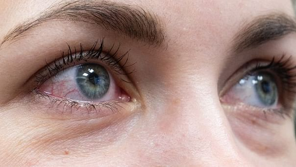 Pink eye or conjunctivitis may also be primary symptom of COVID-19: Study
