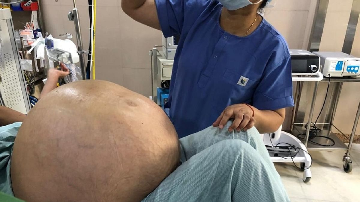 Medical wonder: Doctors in Delhi remove 50 kg ovarian tumour from a woman!