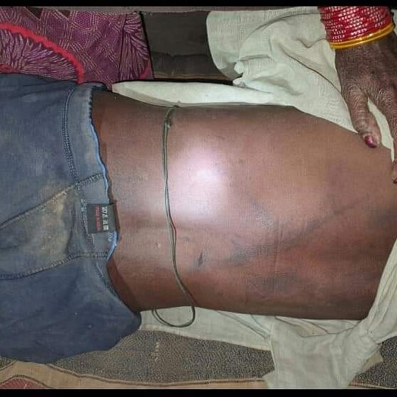 Dalit man killed for touching food plates of upper caste men in MP's Chhattarpur