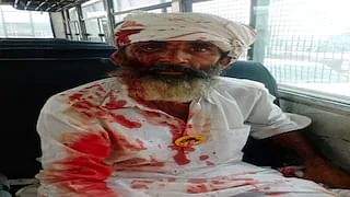 A farmer injured in the police lathicharge