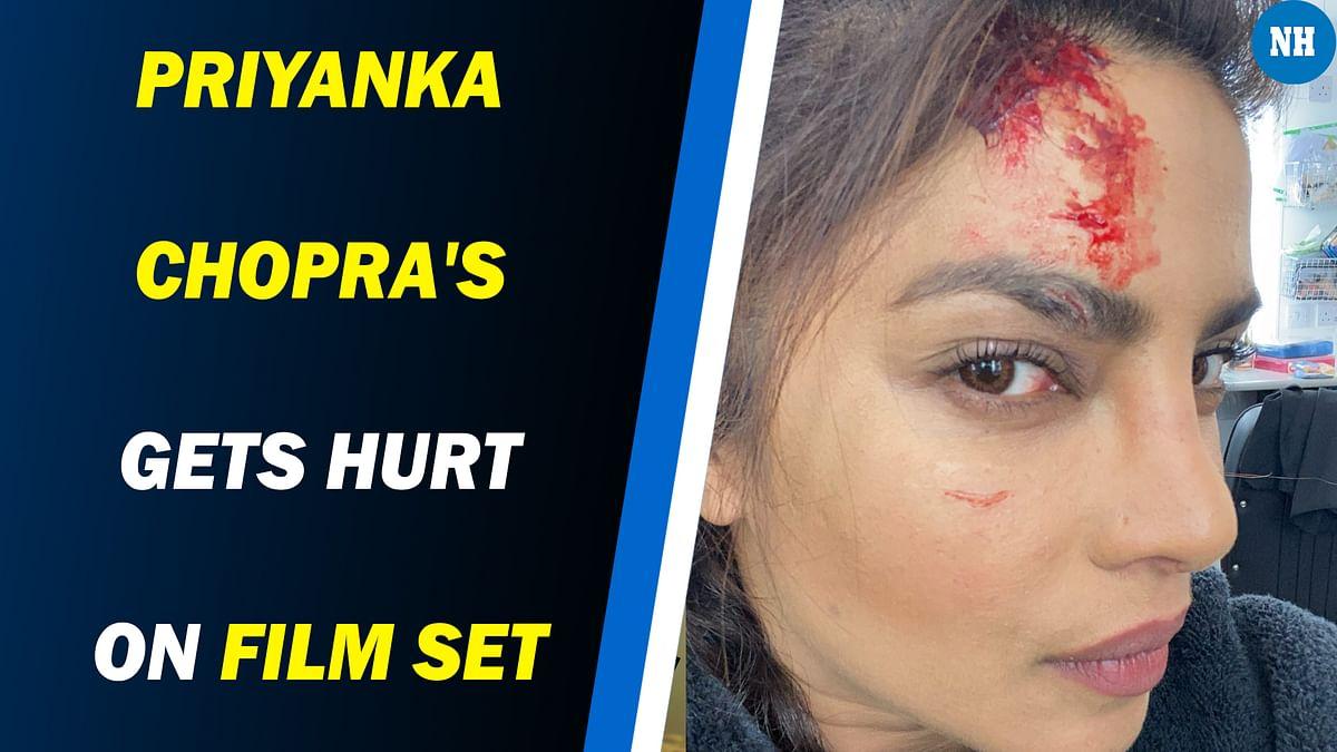 Priyanka Chopra gets hurt on film set
